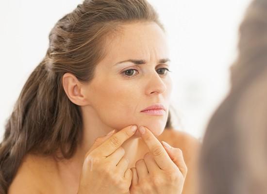 Qué hacer con el acné y sus mitos