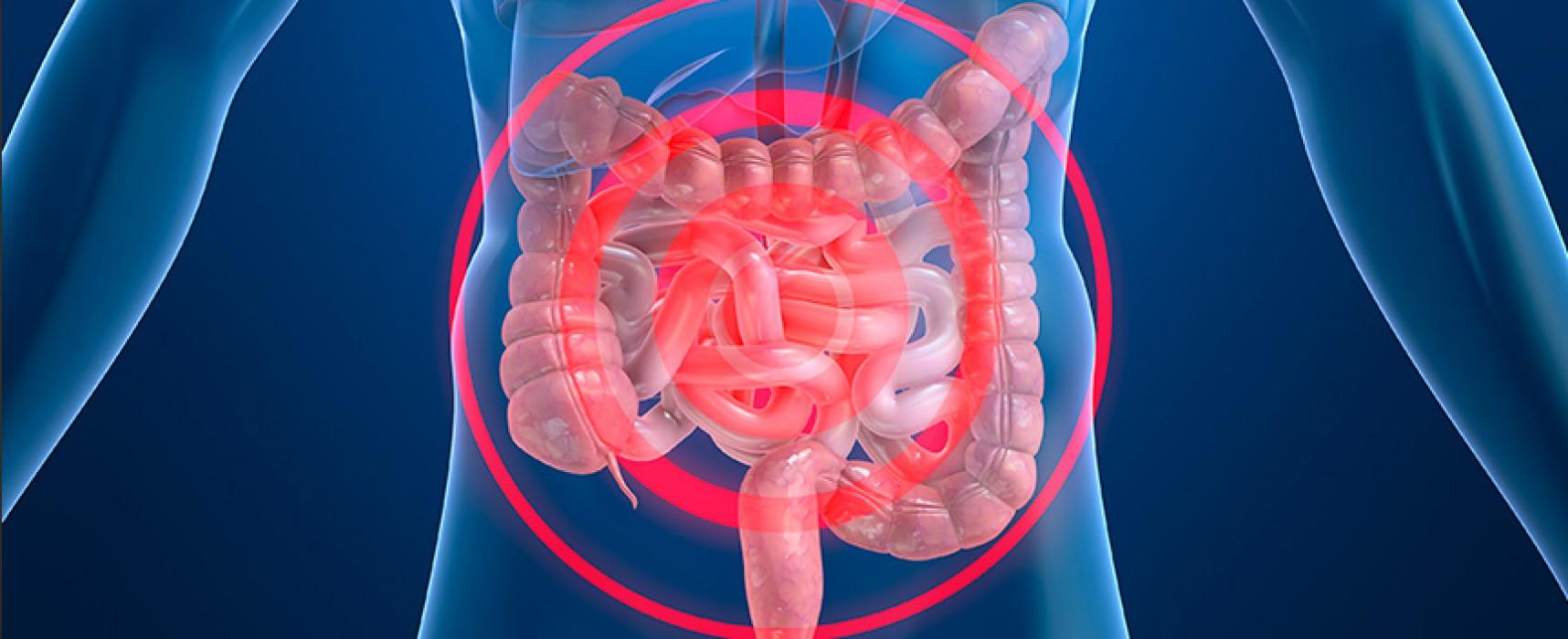 Resultado de imagen de enfermedad inflamatorio intestinal