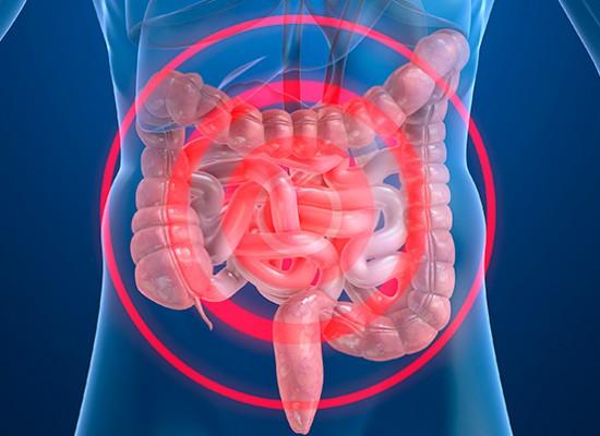 Un hidrogel para tratar la Enfermedad de Crohn