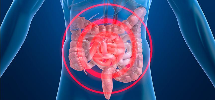 Enfermedad de Crohn Causas, sntomas y tratamiento