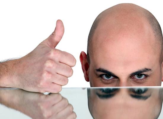 Tipos de alopecia o calvicie