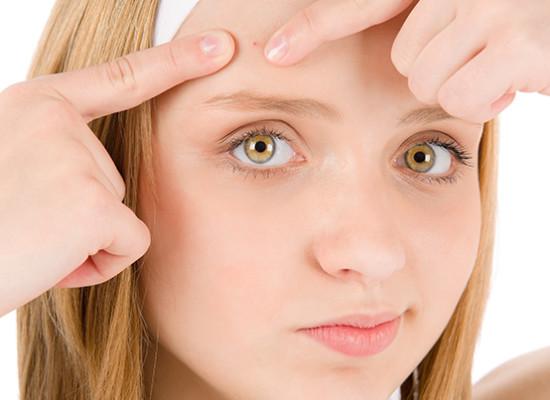 El acné en los adolescentes
