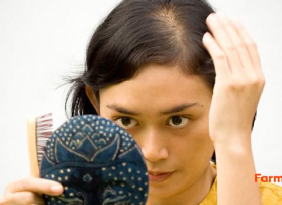 Alopecia femenina, cómo prevenirla