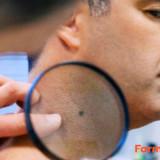 Oscurecimiento de la piel del cuello: ¿Qué hacer?