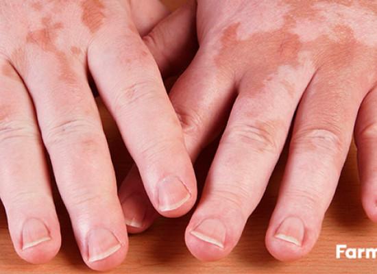 Manchas blancas en la piel: ¿Hay cura para el vitíligo?