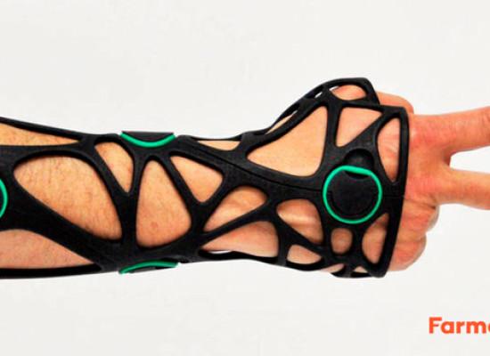 Xkelet, férulas en 3D desde España